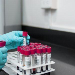 Laboratoire : test sanguin